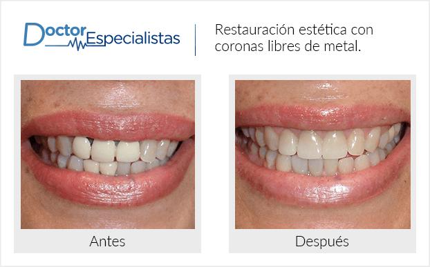 PacienteDentista / Implantología                                           Monterrey antes y despues