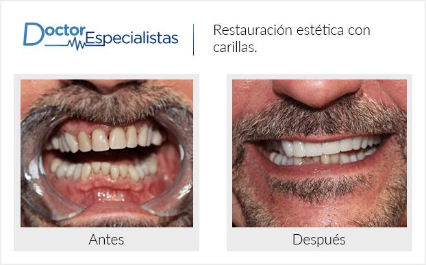 Pacientedentista / Implantología                                           Nogales antes y despues
