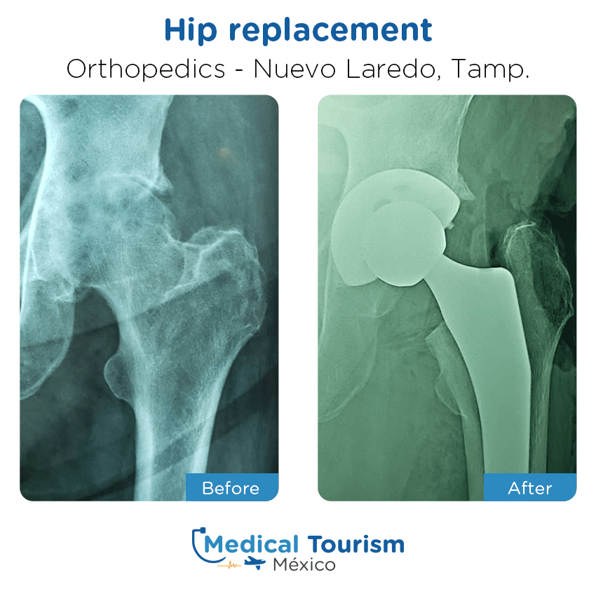 Paciente ortopedia                                          Nuevo Laredo antes y despues