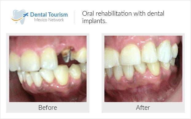 PacienteDentista / Implantología                                           Oaxaca antes y despues
