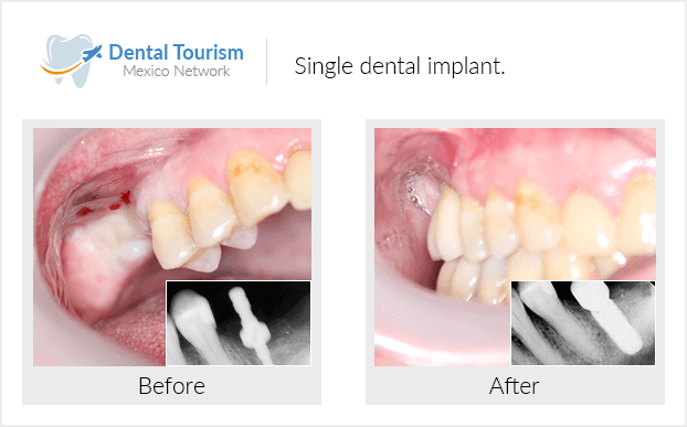 Pacientedentista / Implantología                                           Piedras Negras antes y despues