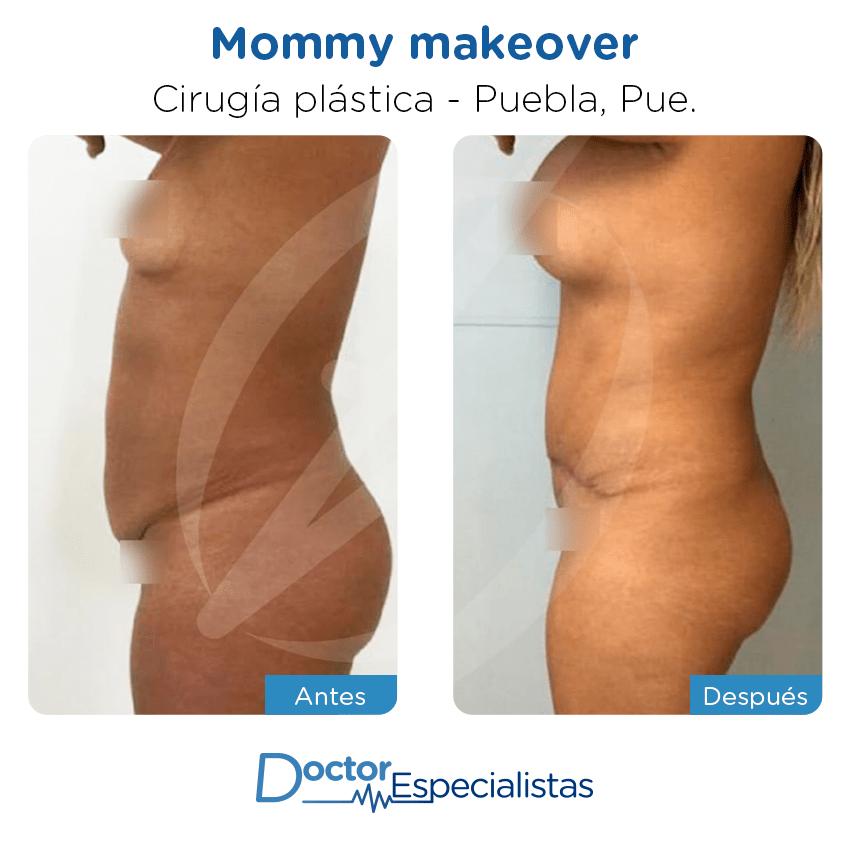 Paciente cirugía plástica                                          Puebla antes y despues