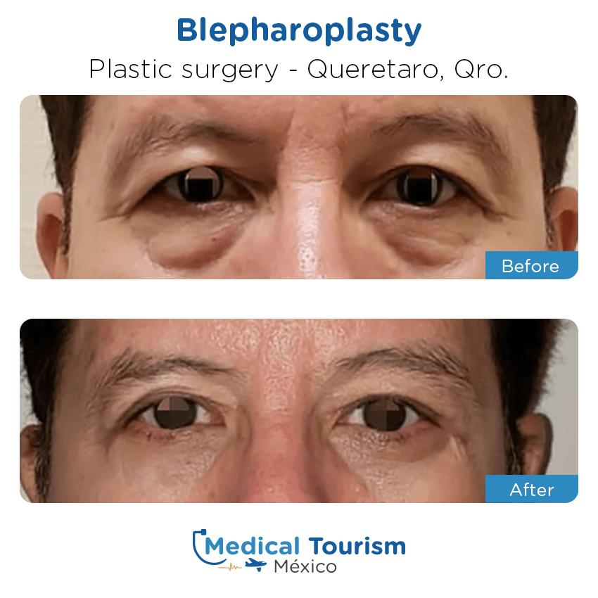 Paciente cirugía plástica                                          Querétaro antes y despues