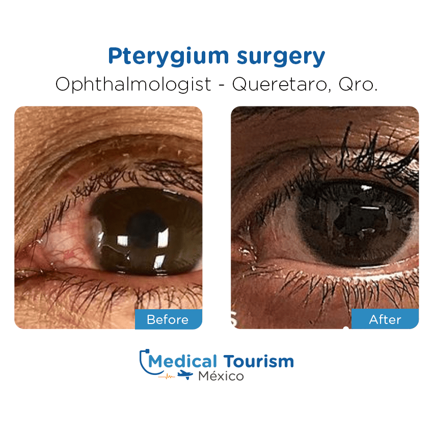 Paciente Oftalmologo Queretaro antes y despues