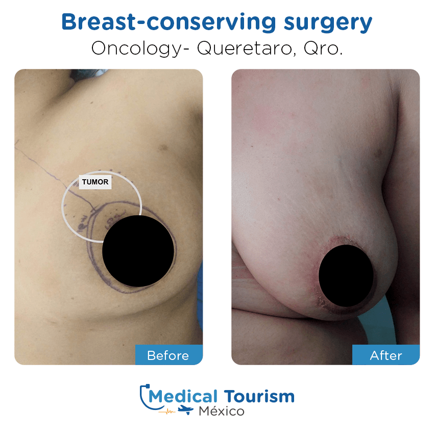 Paciente oncología                                          Querétaro antes y despues
