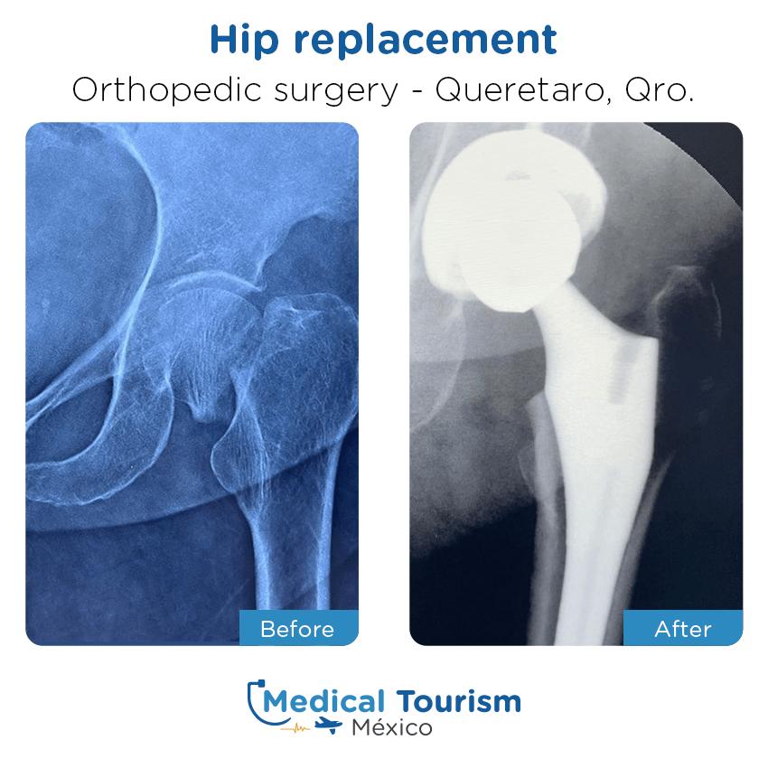 Paciente ortopedia                                          Querétaro antes y despues