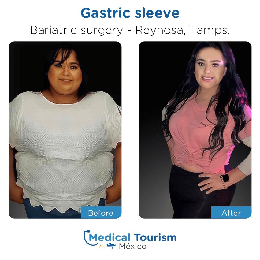 Paciente cirugía bariátrica                                          Reynosa antes y despues