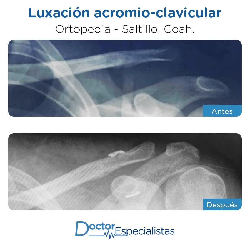 Paciente ortopedia                                          Saltillo antes y despues