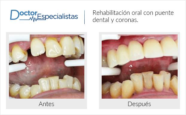 Pacientedentista / Implantología                                           San José del Cabo antes y despues