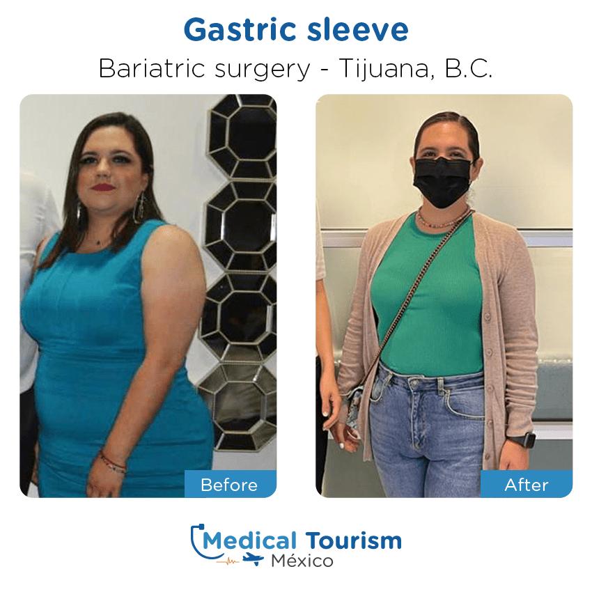 Pacientecirugía bariátrica                                          Tijuana antes y despues