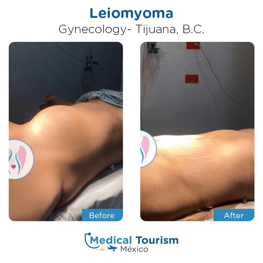 Paciente ginecología                                          Tijuana antes y despues