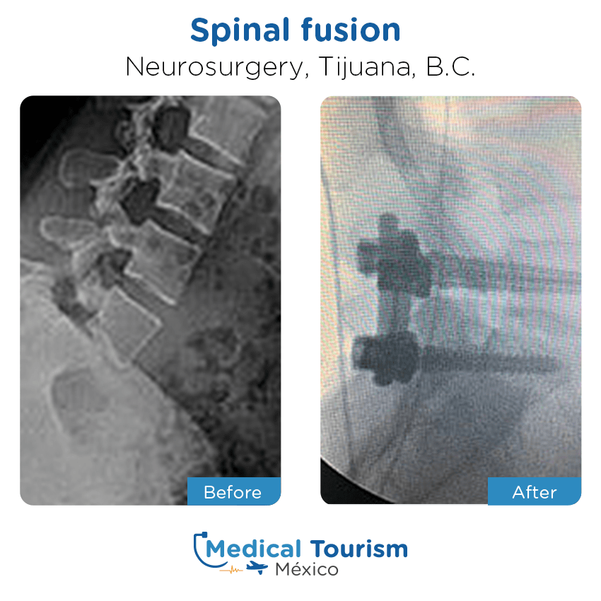 Paciente Neurocirugia Tijuana antes y despues