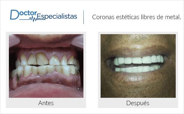PacienteDentista / Implantología                                           Tijuana antes y despues