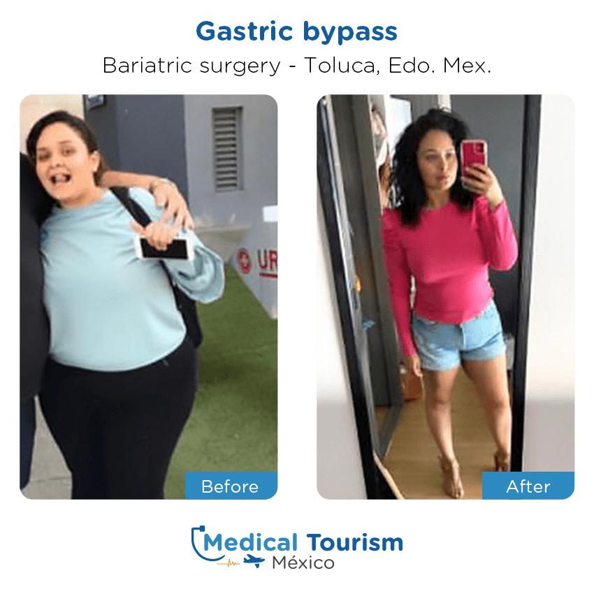 Paciente cirugía bariátrica                                          Toluca antes y despues