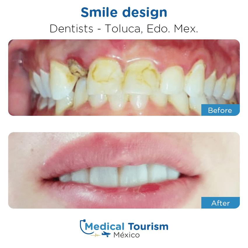 Paciente dentista                                          Toluca antes y despues