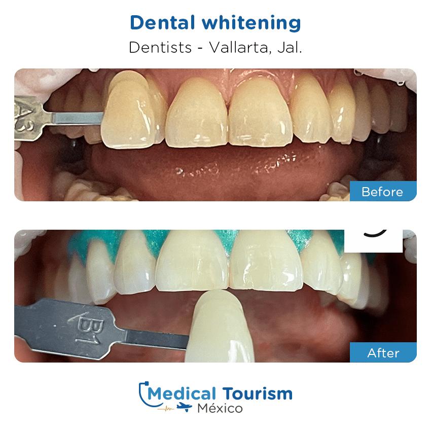 Paciente dentista                                          Vallarta antes y despues