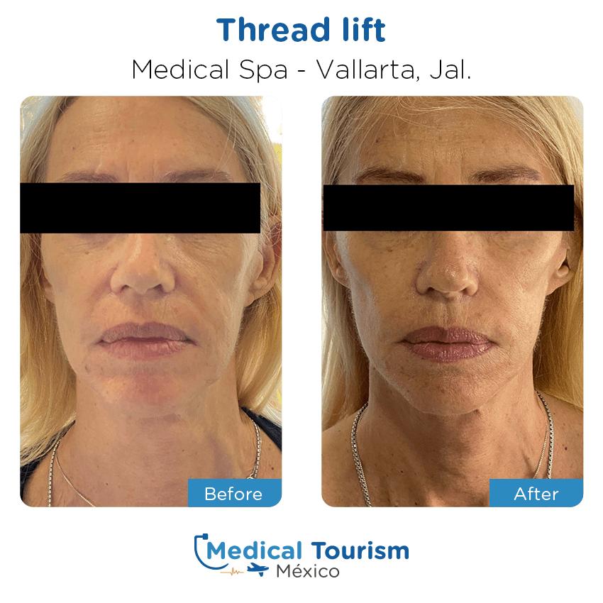 Paciente medicina estética                                          Vallarta antes y despues